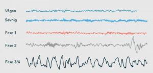 Grafer som viser hjernebølger og søvnfaser
